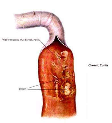 Chronic Colitis